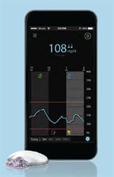 Гардиан Коннект (Guardian Connect - Система непрерывного мониторинга глюкозы).  ПОД ЗАКАЗ!!! Заказ осуществится после вашего звонка!